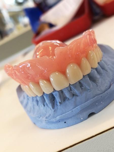 Prothèse dentaire résine