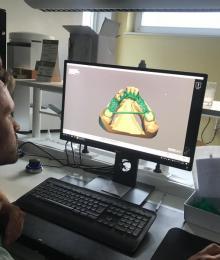 Prothèse squelettique réalisée sur programme informatique, Malonne, Charleroi