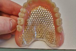 Prothèse complète supérieure avec treillis doré et squelettique inférieur