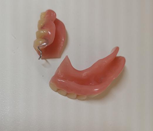 réparation de prothèse dentaire cassée